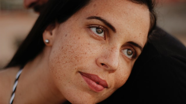 Woman with freckles showing her facial skin.